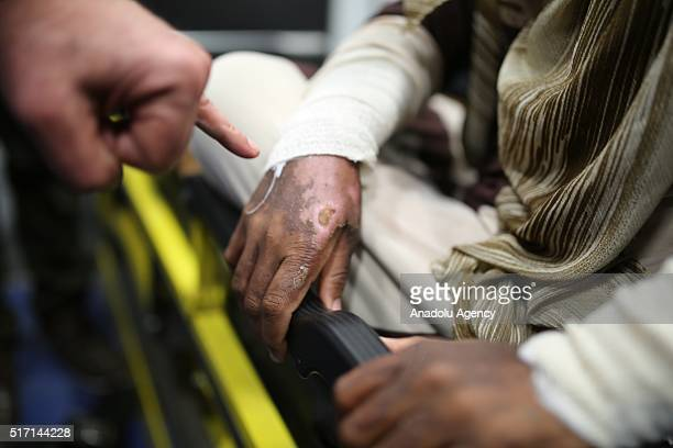 Scalds are seen on bodies of victims who have been affected by the mustard gas attack of ISIS in Tuz Khormatu District of Kirkuk at Erbil...
