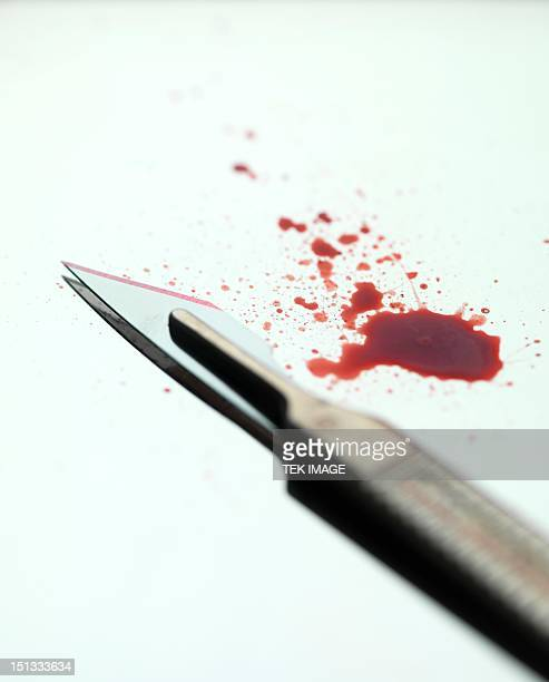 scalpel - scalpel stock photos and pictures