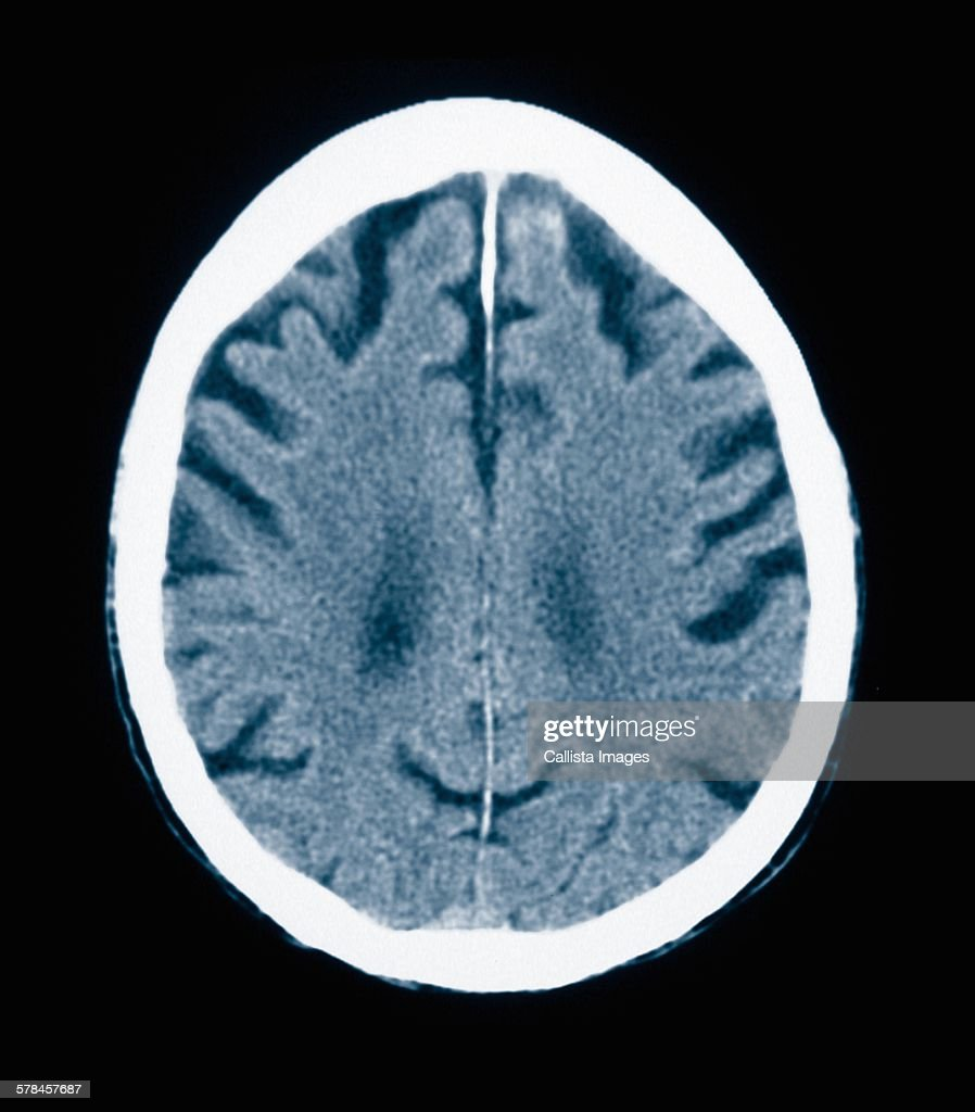 CT scan 84 year old male with Alzheimers disease. CT shows brain atrophy with small gyri and large sulci : Stock Photo