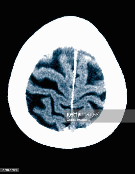 CT scan 84 year old male with Alzheimers disease. CT shows brain atrophy with small gyri and large sulci