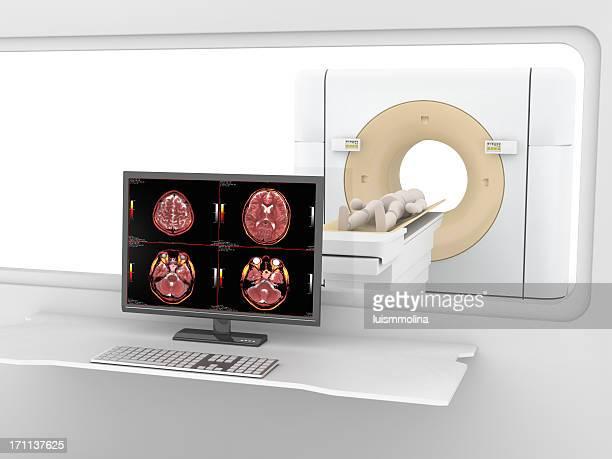 Escáner tc