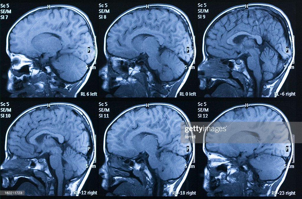 MRI scan of brain : Stock Photo