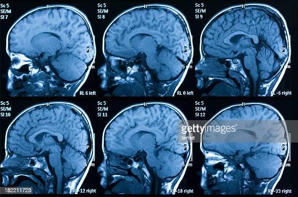 Image à résonance magnétique de cerveau