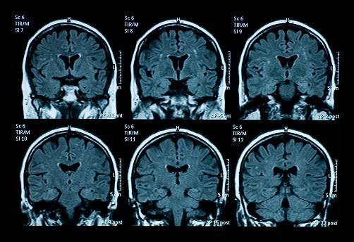 MRI scan of brain 97506007