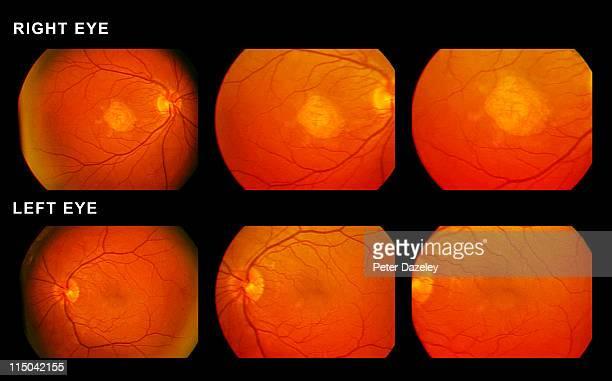 Scan of eyes showing macular degeneration