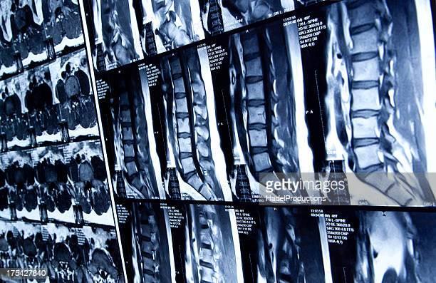 La MRI de la región lumbar de la columna vertebral humana
