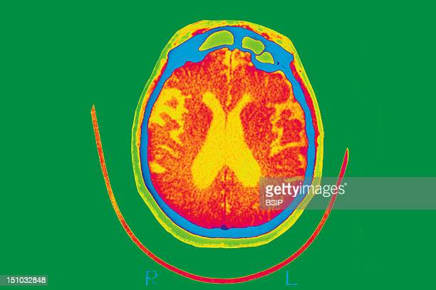 Scan Of The Brain Of A Patient Affected By Alzheimer's Disease Axial Section Intersections Of Lateral Ventricles Are Dilated
