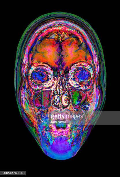 MRI scan of woman's face (Digital Enhancement)