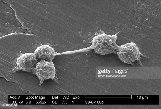 Scanning electron micrograph of a laboratorygrown potable water biofilm with the presence of Hartmannella vermiformis cysts 2002 Aquatic bacteria...