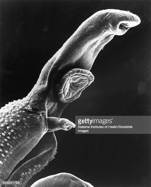 scanning electron micrograph of a schistosome parasite. - microscopio elettronico a scansione foto e immagini stock