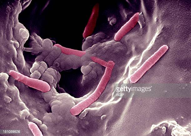 Scanning Electron Micrograph This Bacillus Causes Serious Nosocomial Infections