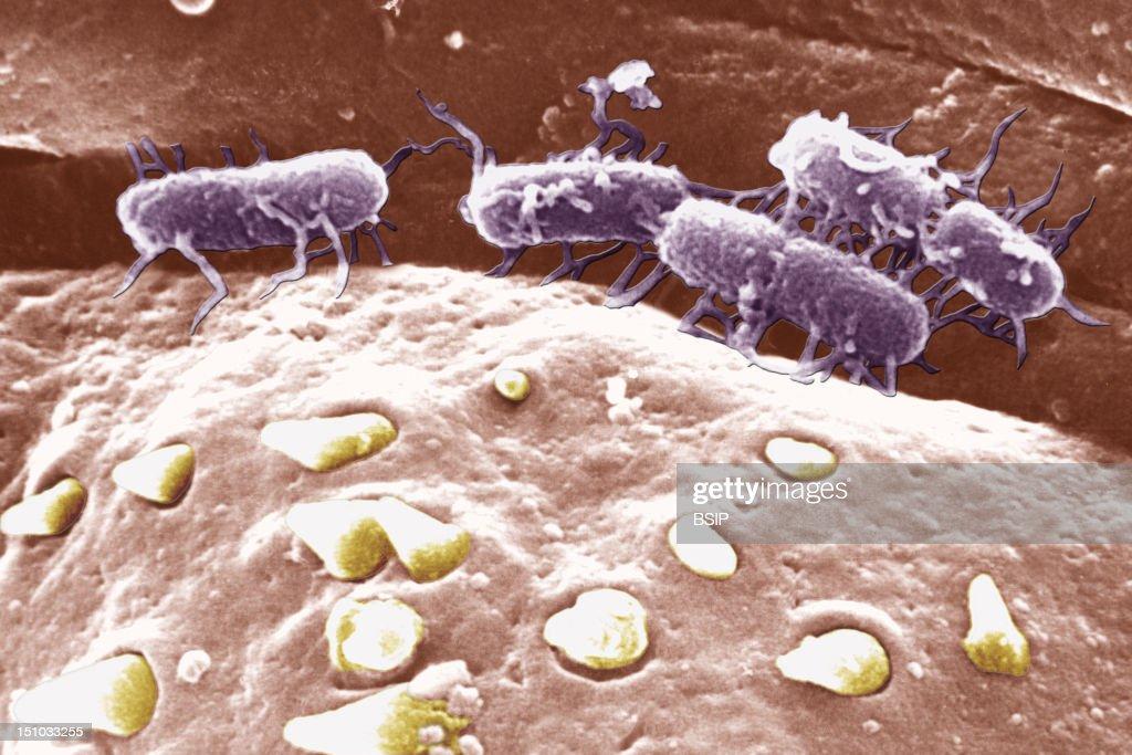 Salmonella Typhi : News Photo