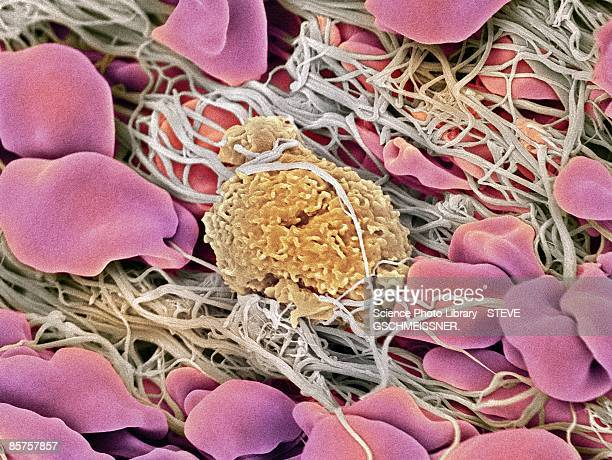 Scanning electron microscope (SEM) of white blood cell