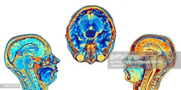 mri scans of normal brains, illustration - brain stem stock photos and pictures