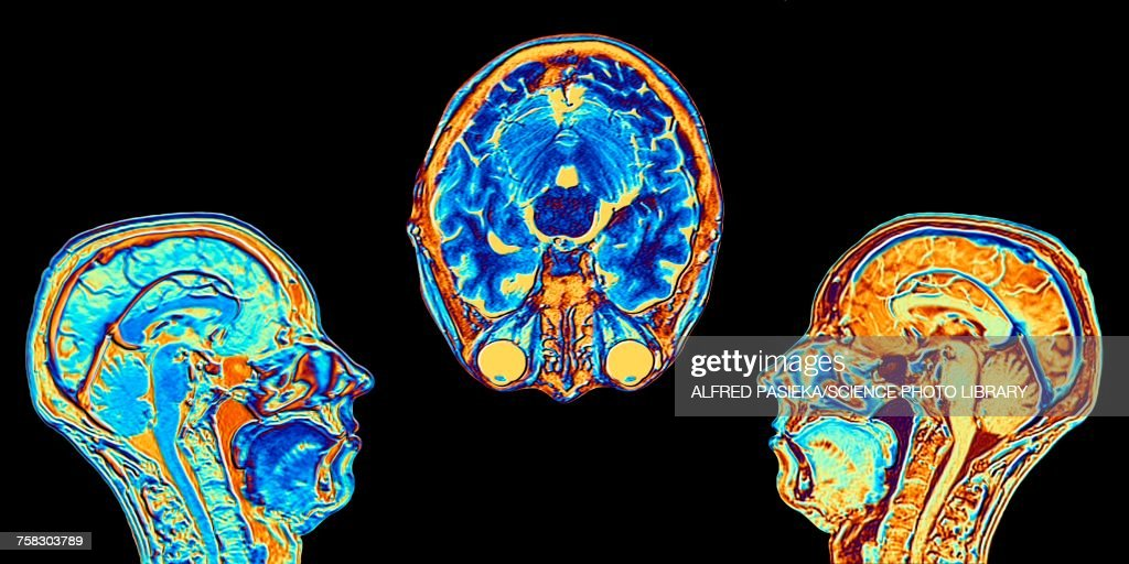 MRI scans of normal brains, illustration : Stock Photo