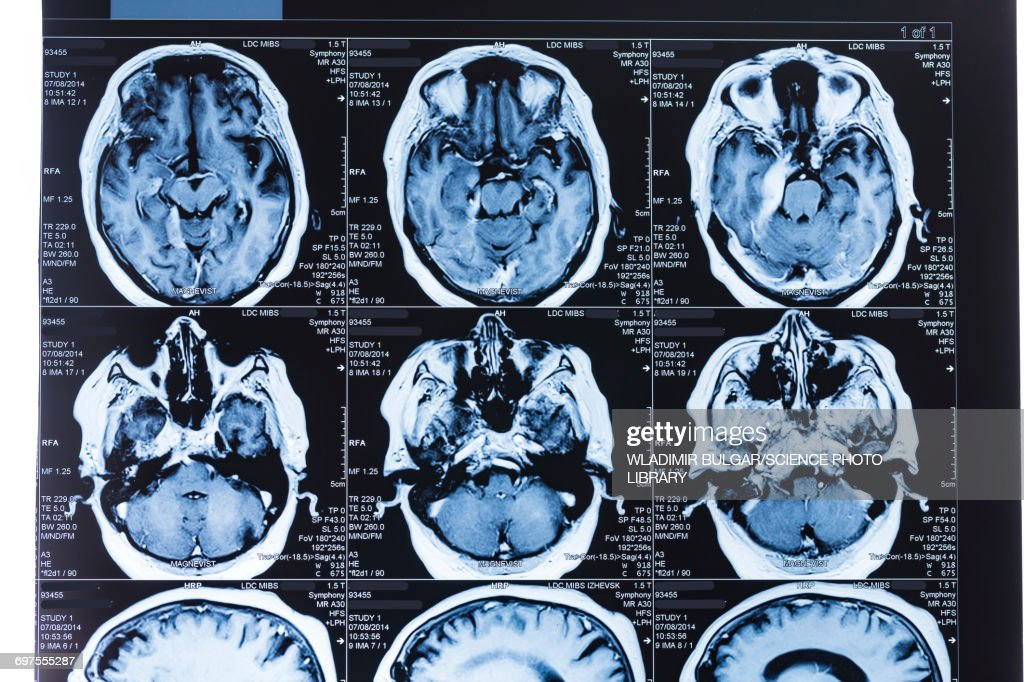 MRI scans of the human brain : Stock Photo