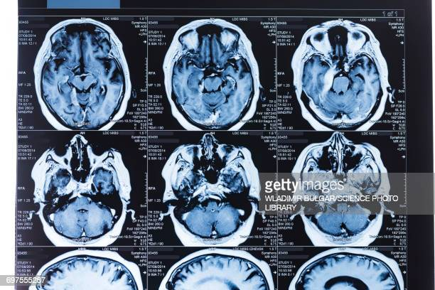 MRI scans of the human brain
