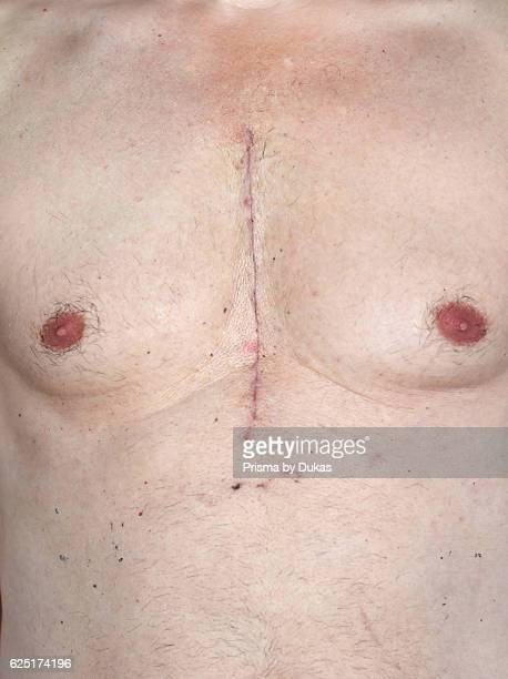Scar from open heart surgery where the sternum was cut in two and the rib cage sprung Below the scar holes show where the drains and pacemaker cables...