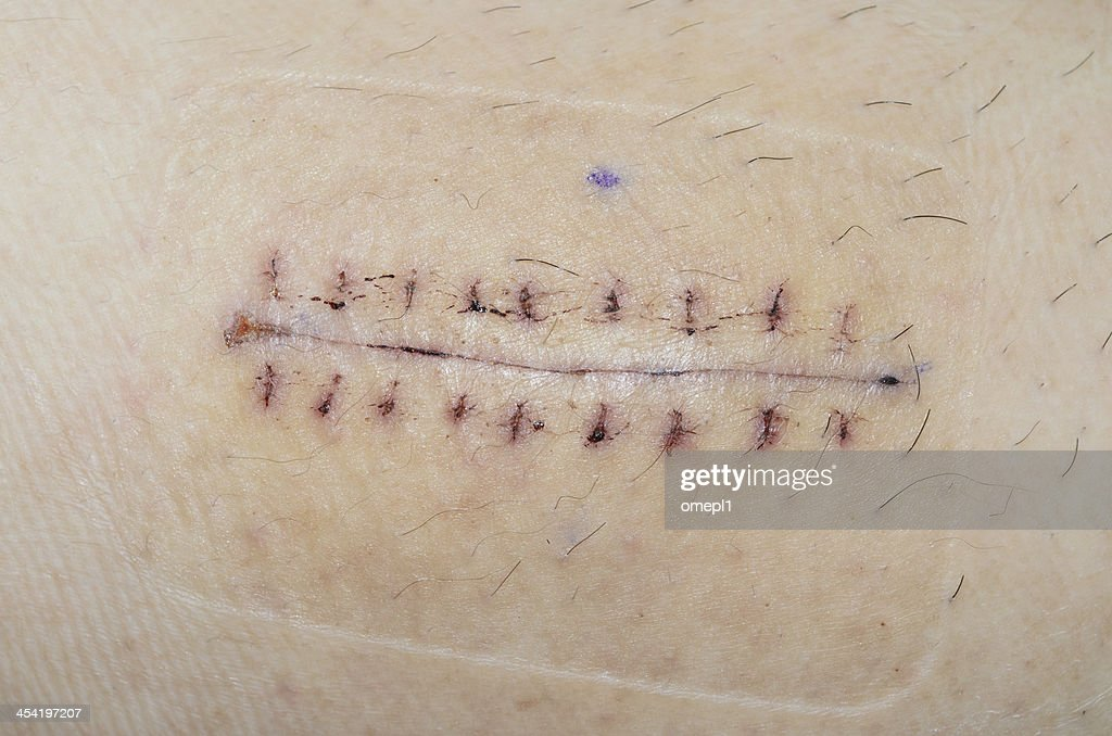 Scar from surgery : Stock Photo