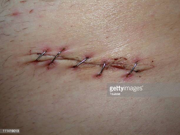 scar of appendicitis - medical stitches stock photos and pictures