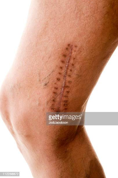 scar - medical stitches stock photos and pictures