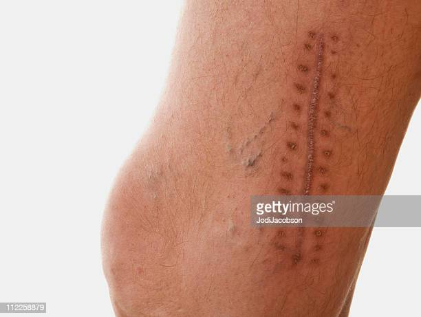 scar - suture stock photos and pictures