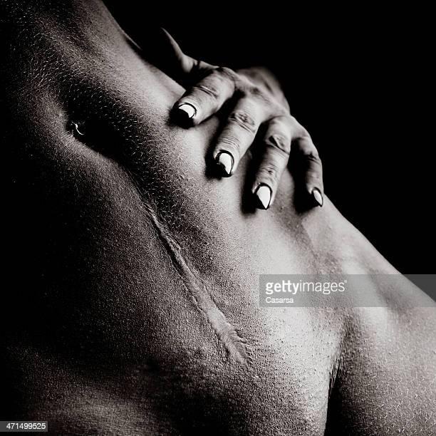 cicatriz - cicatriz imagens e fotografias de stock