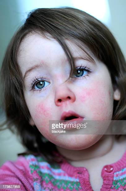 scarlet fever - cheek stock pictures, royalty-free photos & images