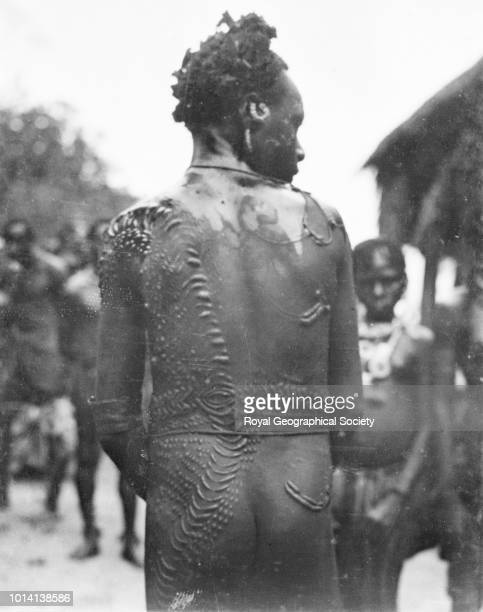 Scars on the back of a young man Papua New Guinea 1913