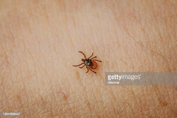 scary insect taiga mite crawling on human skin close up - ライム病 ストックフォトと画像