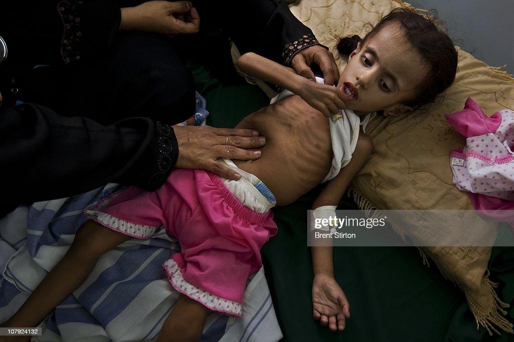 The Republic Of Yemen : News Photo