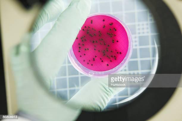 Scientist analyzing bacterial colonies
