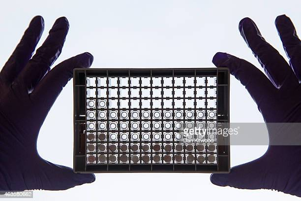 Scientist examining cells in a 96-well plate. These plates allow scientists to look at lots of cells at the same time and directly compare cells that...