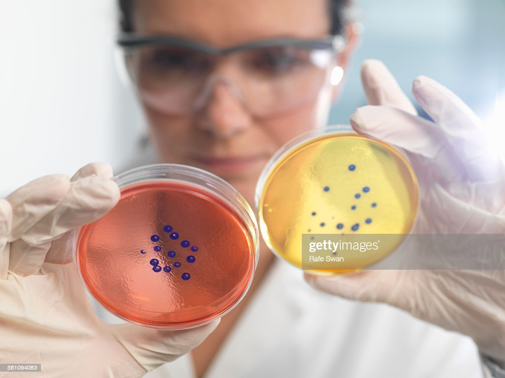 Scientist examining set of petri dishes in microbiology lab : Stock Photo