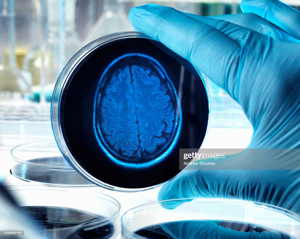 Scientist holding a petri dish with a brain scan illustrating research into dementia, alzheimers and other brain disorders. : Stock Photo