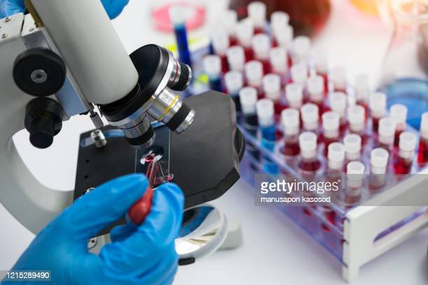 scientist using microscope conducting genetic research of blood sample in laboratory. - aids stock pictures, royalty-free photos & images