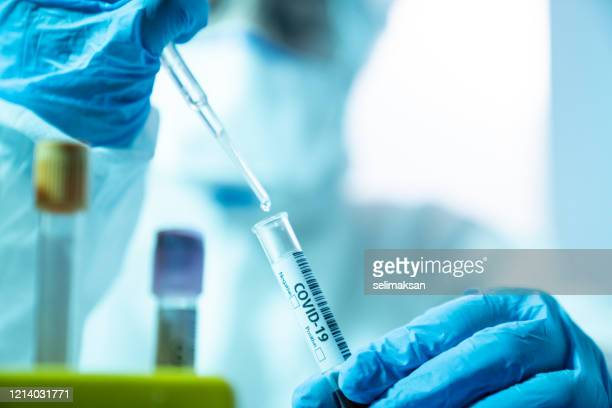 scientist woman working in the cdc laboratory for covid-19 - screening stock pictures, royalty-free photos & images