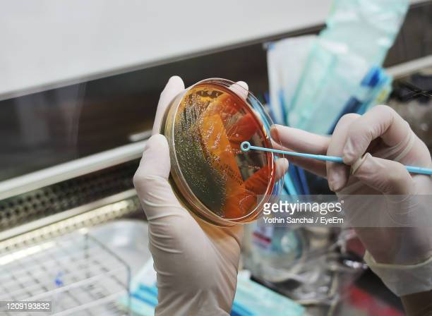 scientists are holding a bacterial culture plate. - gonorrea fotografías e imágenes de stock
