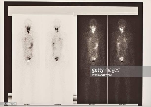 Scintigraphy Scanner de la thyroïde et cancer des poumons