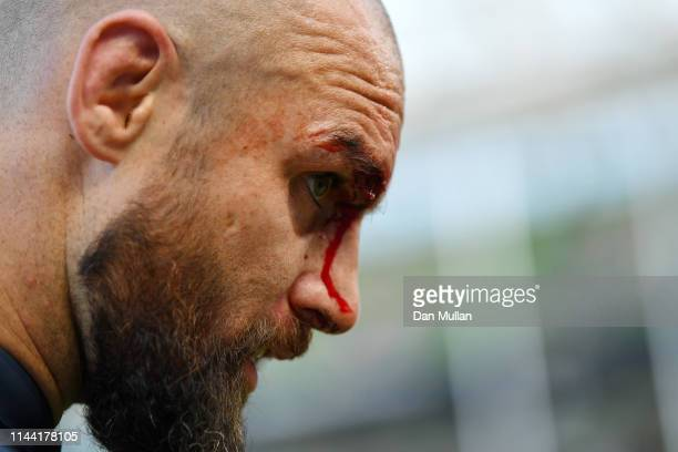 Scott Fardy of Leinster leaves the field with a cut to his head following the Heineken Champions Cup Semi Final match between Leinster Rugby and...