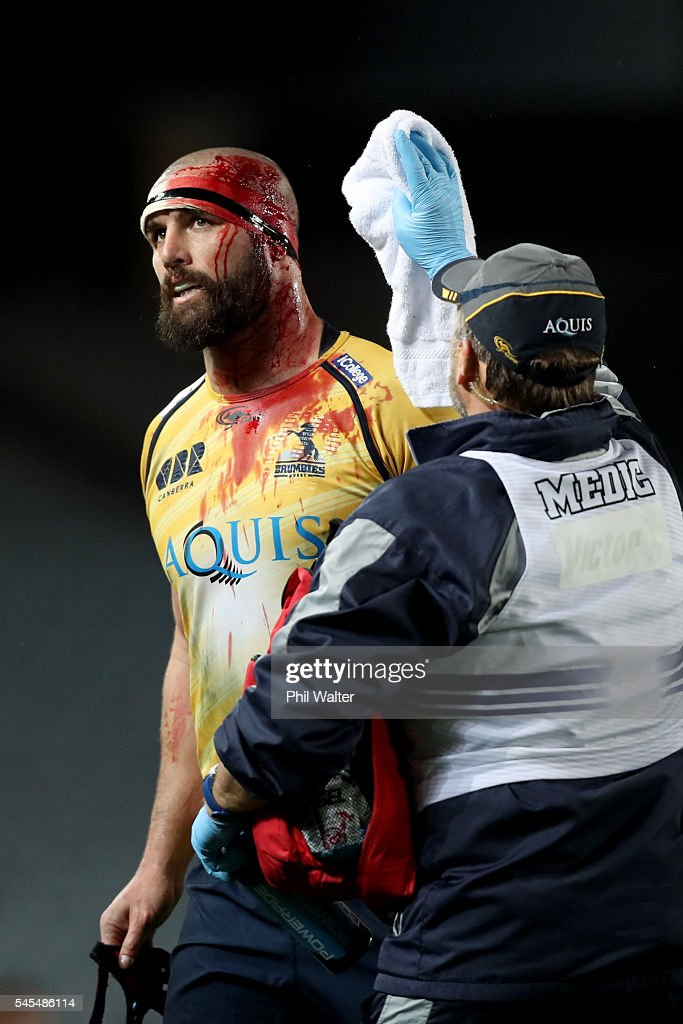 Scott Fardy of the Brumbies is injured with a cut to his head during the round 16 Super Rugby match between the Blues and the Brumbies at Eden Park on July 8, 2016 in Auckland, New Zealand.