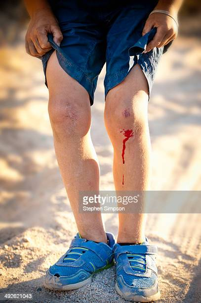 scraped and bleeding knees of a young boy - bloody leg stock photos and pictures