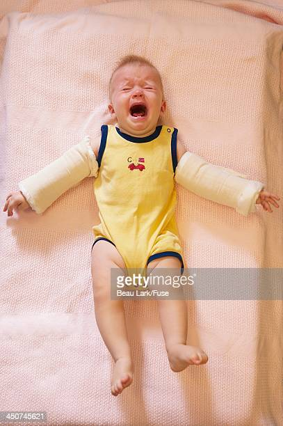 screaming baby with casts on arms - baby blues stock pictures, royalty-free photos & images