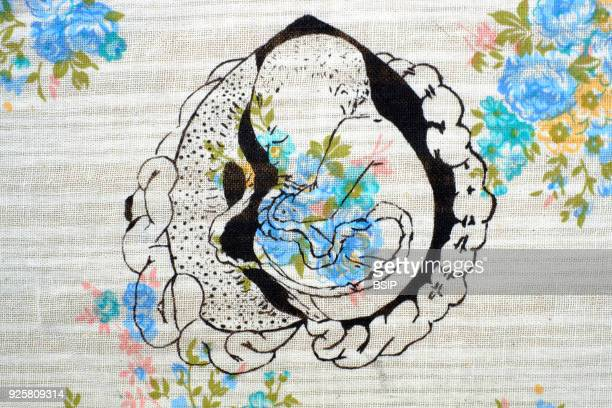 Screen print on flowery paper illustrating an in utero foetus