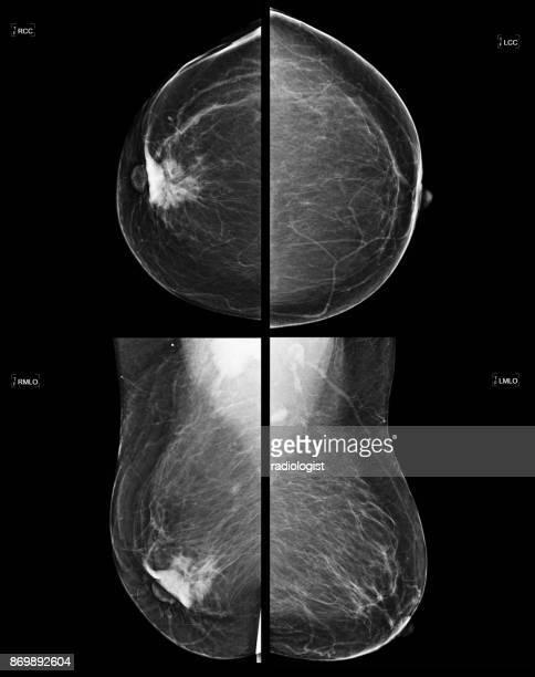 mamografia de rastreio do cancro da mama - câncer tumor - fotografias e filmes do acervo