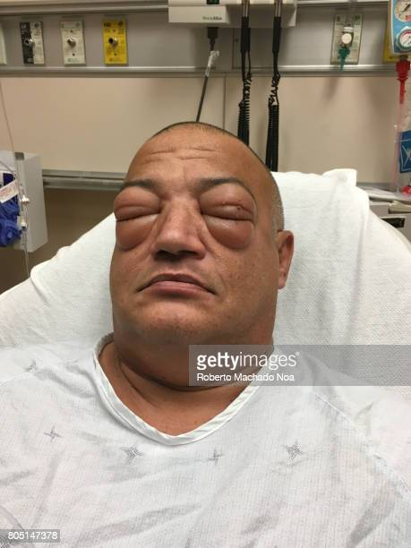 seafood allergy: adult man suffering severe allergic reaction in a hospital bed where he gets medical attention - swollen stock photos and pictures