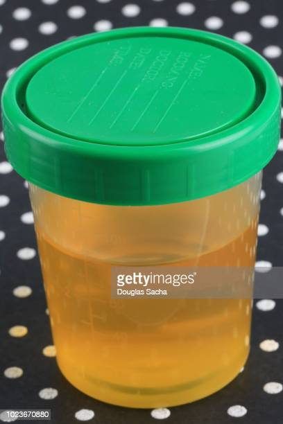 sealed container of a urine sample - cholesterol test stock photos and pictures
