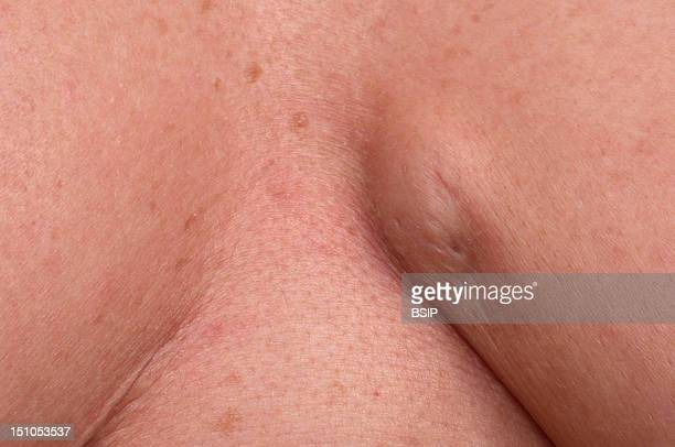 Sebaceous Cyst In The Submammary Fold