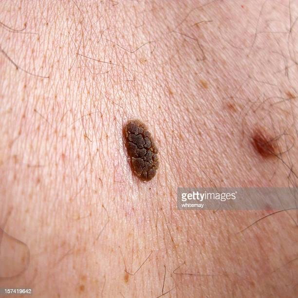 seborrhoeic keratosis - wart stock photos and pictures