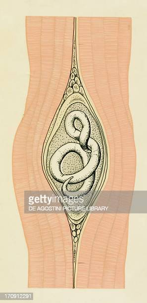 Section of muscle encysted by trichinella nematode parasite Drawing